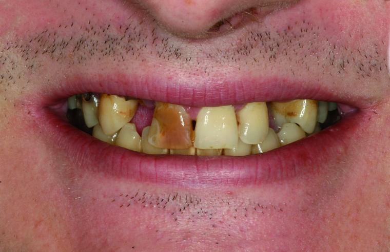 Zahnsanierung Vollnarkose Erfahrungen